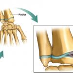 gymnast-wrist-compression-growth-plate-injury